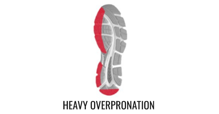 diagram showing motion control shoes