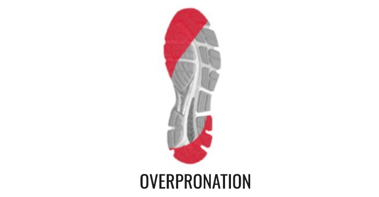 Graphic demonstrating stability shoes and overpronation